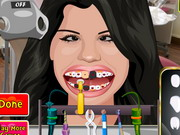 Selena Perfect Teeth Game