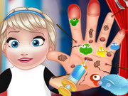 Baby Elsa Hand Doctor Game