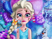 other, boy , cartoon , girl , kid , surgery , injured , elsa , frozen