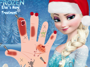 other, boy , cartoon , frozen , girl , kid , surgery , elsas , hand , treatment